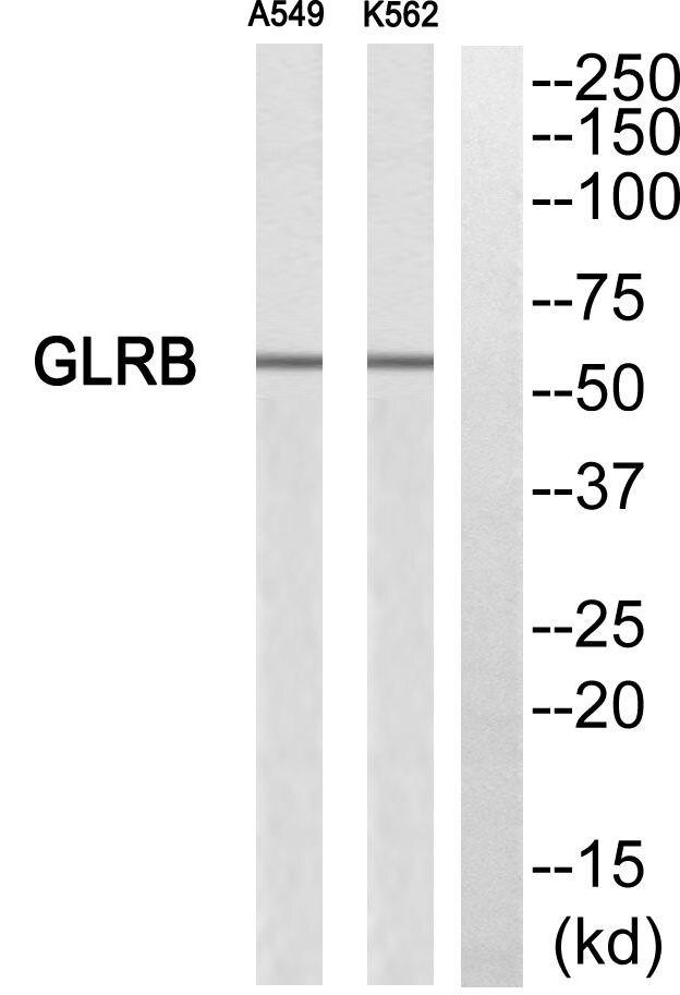 GLRB Antibody (PA5-39191)