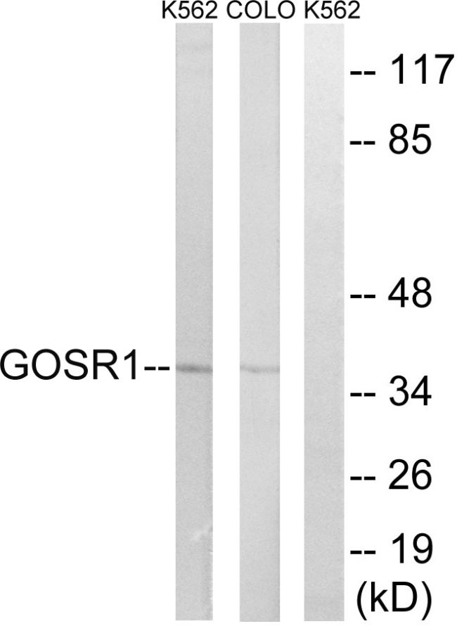 GOSR1 Antibody (PA5-39192)