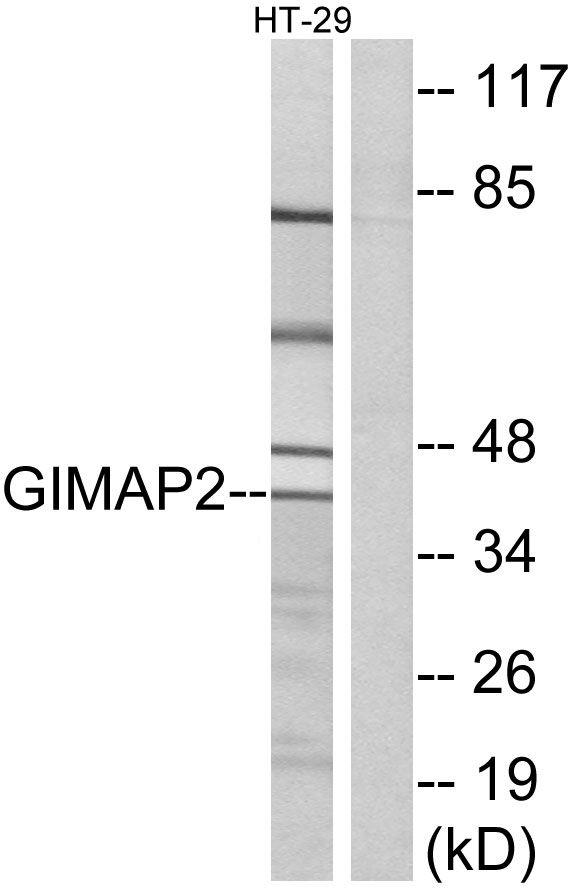 GIMAP2 Antibody (PA5-39196) in Western Blot