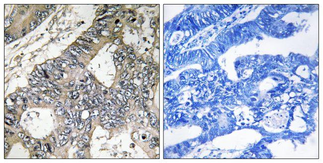 GUF1 Antibody (PA5-39198) in Immunohistochemistry (Paraffin)