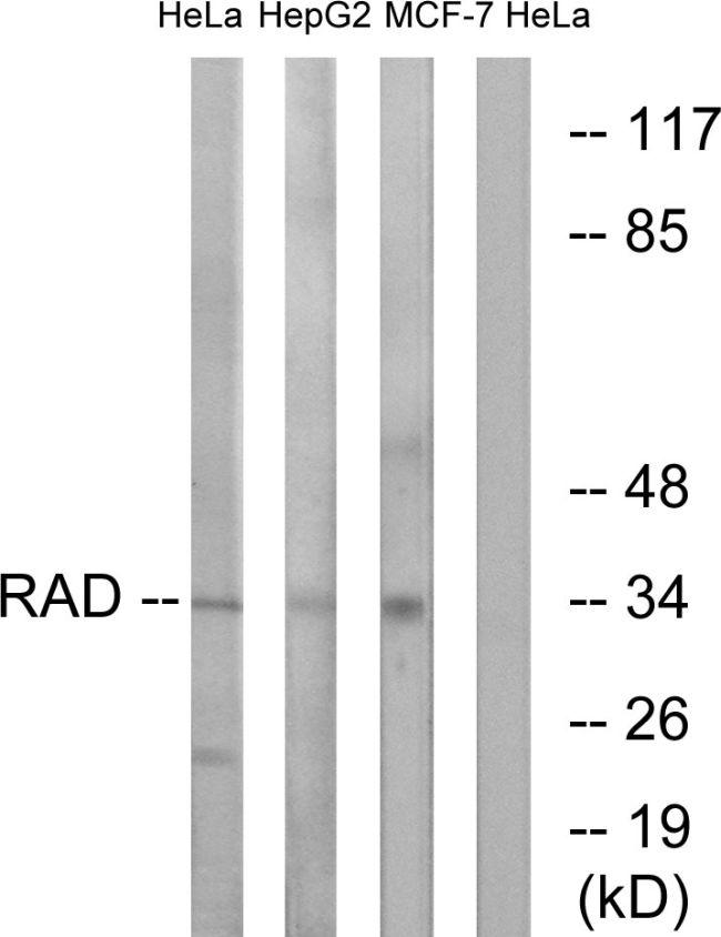 RRAD Antibody (PA5-39199) in Western Blot