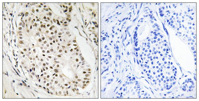 hnRNP UL2 Antibody (PA5-39206) in Immunohistochemistry (Paraffin)