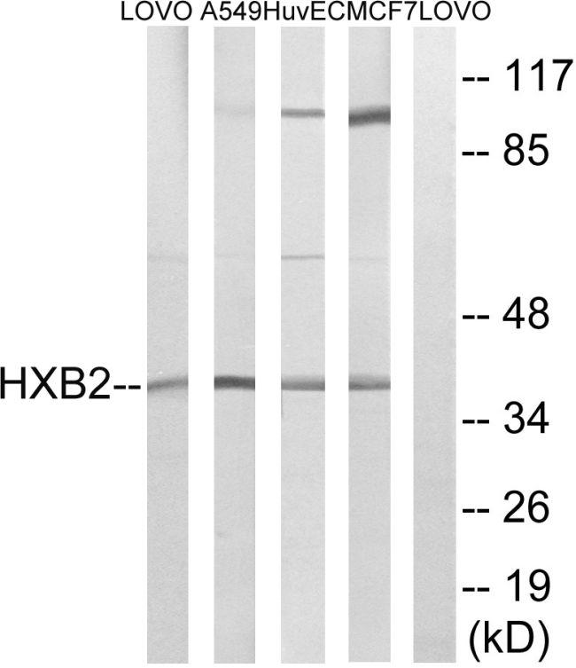 HOXB2 Antibody (PA5-39210)