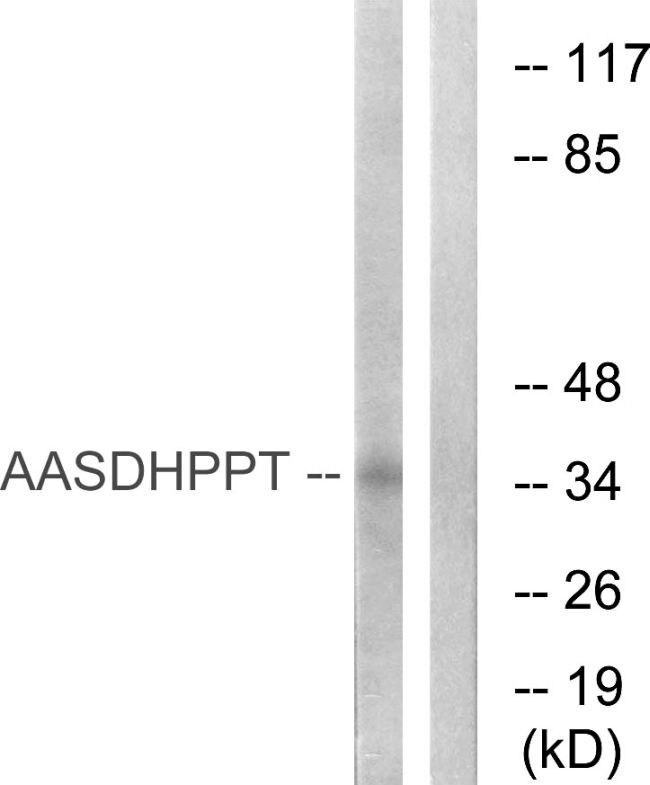 AASDHPPT Antibody (PA5-39222)