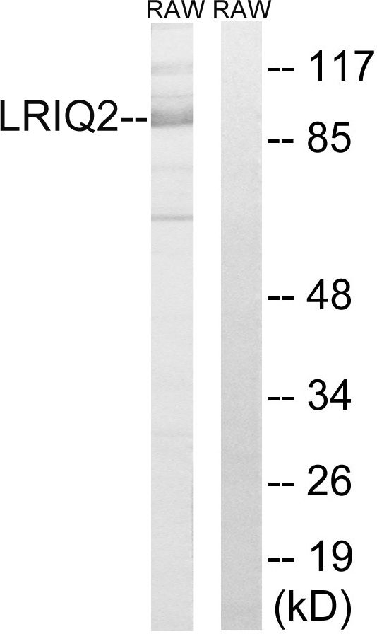CEP97 Antibody (PA5-39223) in Western Blot