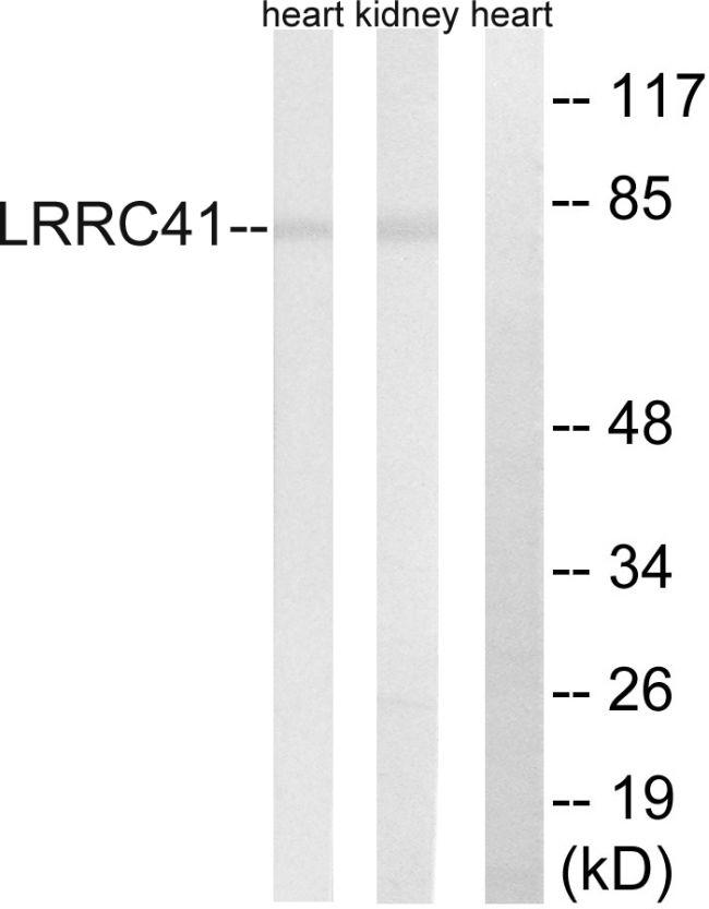 LRRC41 Antibody (PA5-39224)