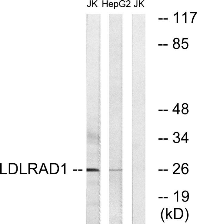 LDLRAD1 Antibody (PA5-39227) in Western Blot