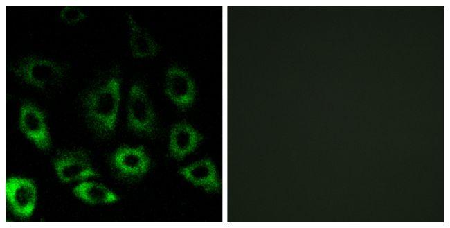 MBTPS2 Antibody (PA5-39236) in Immunofluorescence