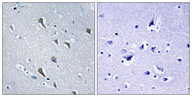 MRPS2 Antibody (PA5-39239)