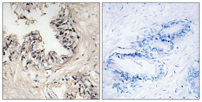 MRPS36 Antibody (PA5-39242)