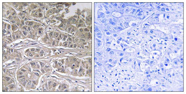 SLC25A21 Antibody (PA5-39243)
