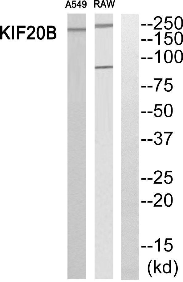 MPHOSPH1 Antibody (PA5-39253)