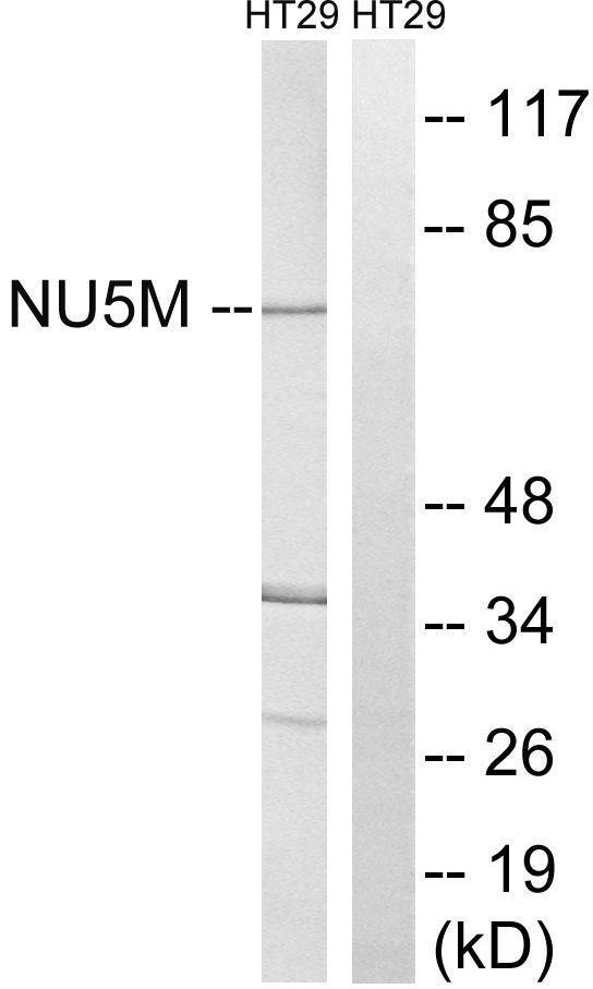 MT-ND5 Antibody (PA5-39277) in Western Blot