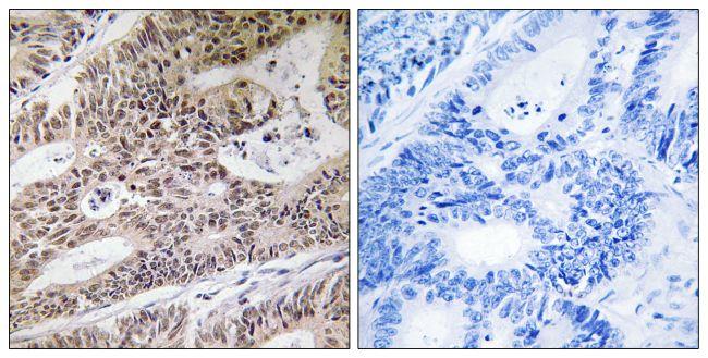 NPHP4 Antibody (PA5-39283)