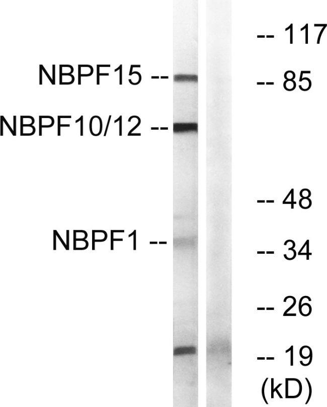 NBPF Pan Antibody (PA5-39292)