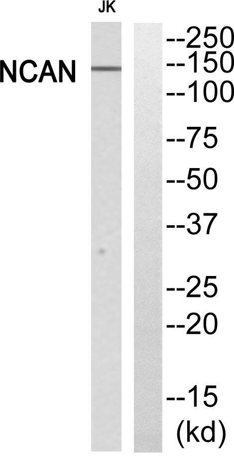 Neurocan Antibody (PA5-39296) in Western Blot