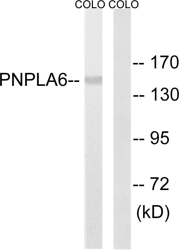 NTE Antibody (PA5-39304) in Western Blot