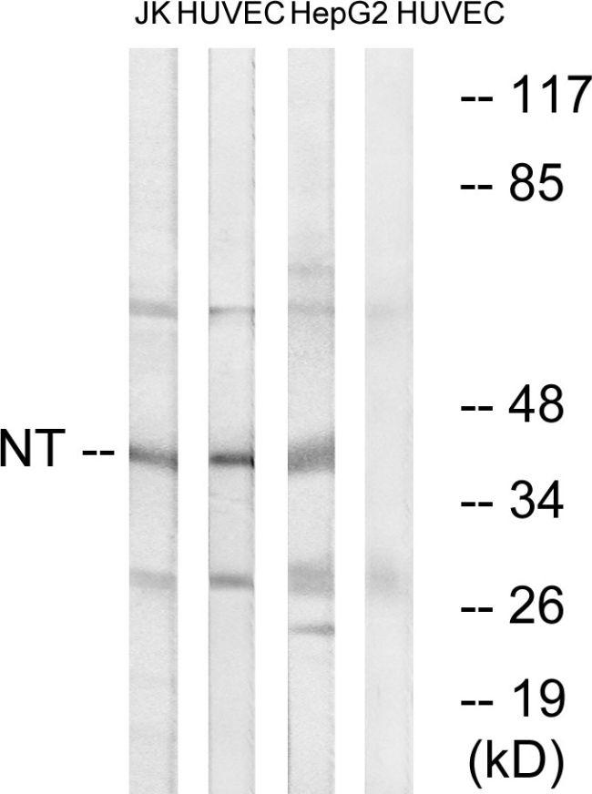 NTM Antibody (PA5-39305) in Western Blot