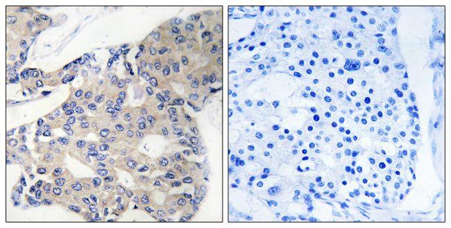 NCOA4 Antibody (PA5-39311) in Immunohistochemistry (Paraffin)