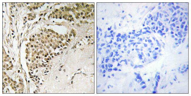 NOM1 Antibody (PA5-39315) in Immunohistochemistry (Paraffin)