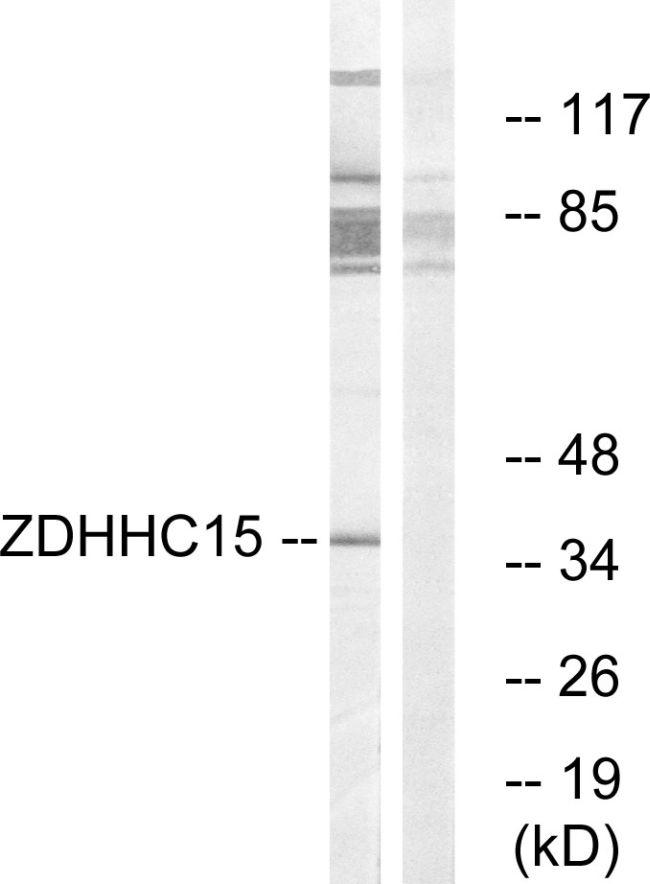 ZDHHC15 Antibody (PA5-39327) in Western Blot