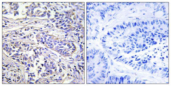 PLCXD1 Antibody (PA5-39339) in Immunohistochemistry (Paraffin)