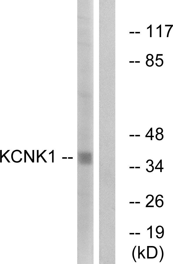 KCNK1 Antibody (PA5-39342) in Western Blot