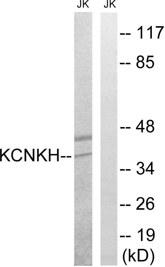 KCNK17 Antibody (PA5-39345)