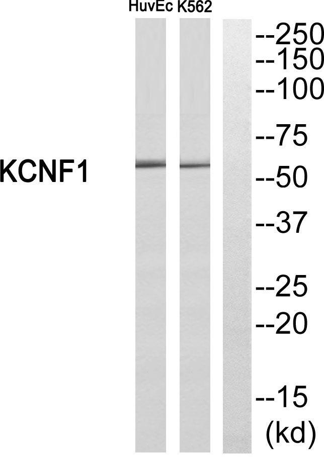 KCNF1 Antibody (PA5-39351) in Western Blot