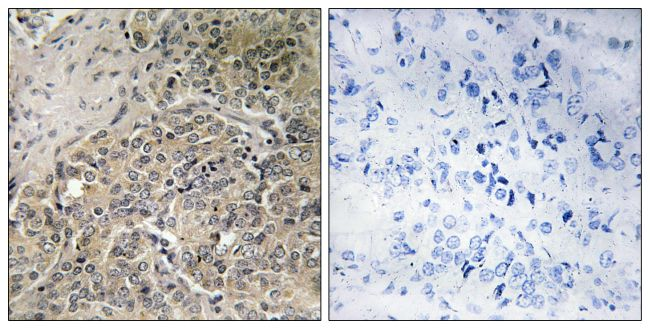 A26C2/A26C3 Antibody (PA5-39360) in Immunohistochemistry (Paraffin)