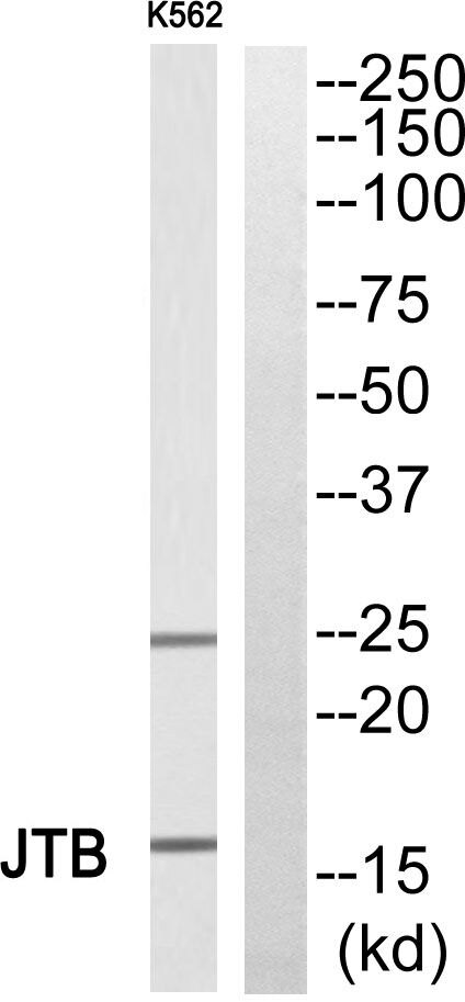 JTB Antibody (PA5-39364)