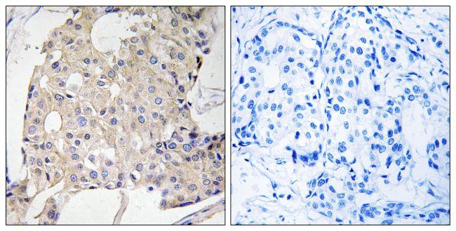 NDRG3 Antibody (PA5-39365) in Immunohistochemistry (Paraffin)