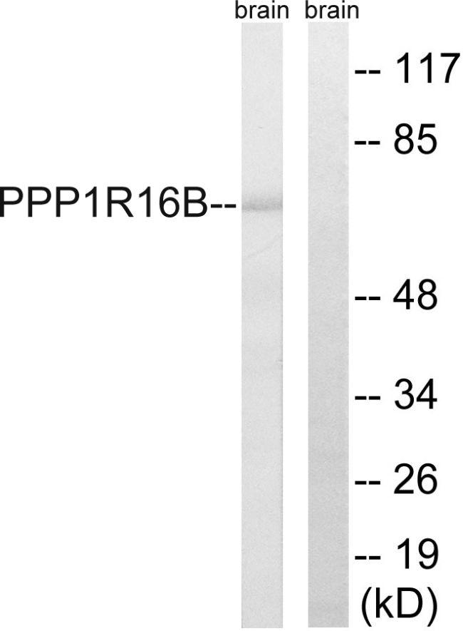 PPP1R16B Antibody (PA5-39366) in Western Blot