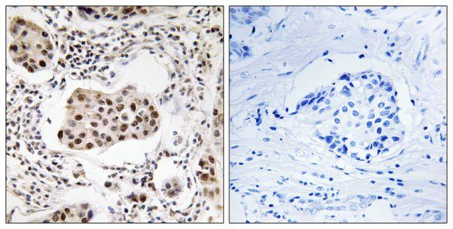 PPP1R11 Antibody (PA5-39367) in Immunohistochemistry (Paraffin)