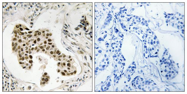 PMS2/PMS2CL Antibody (PA5-39370) in Immunohistochemistry (Paraffin)