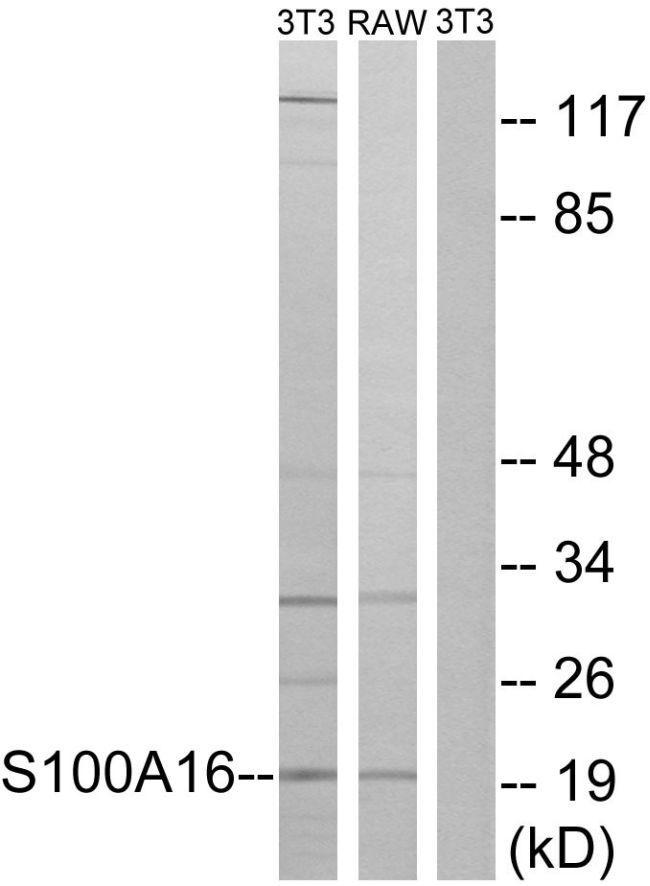 S100A16 Antibody (PA5-39371)