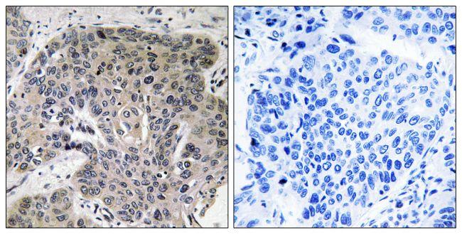 S100A3 Antibody (PA5-39372)
