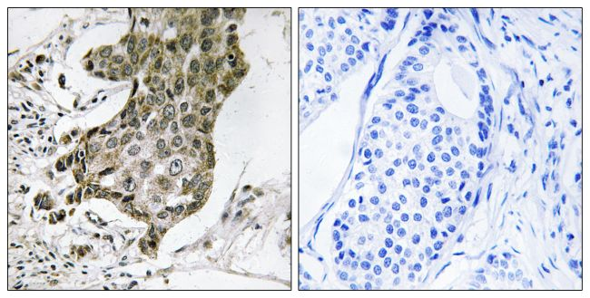 RABEP1 Antibody (PA5-39380)