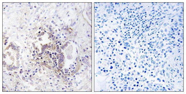 CHML Antibody (PA5-39382) in Immunohistochemistry (Paraffin)