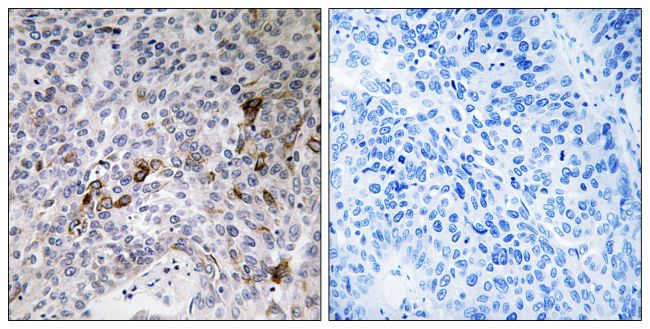 RAB11FIP3 Antibody (PA5-39383) in Immunohistochemistry (Paraffin)
