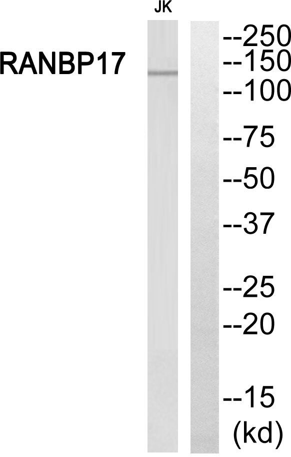 RANBP17 Antibody (PA5-39394) in Western Blot