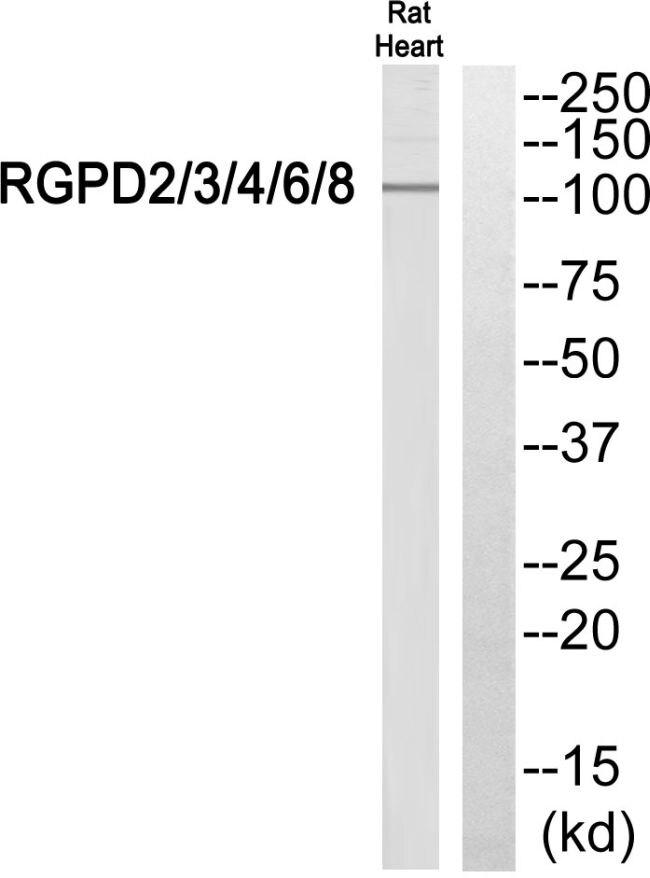 RGPD Pan Antibody (PA5-39396) in Western Blot