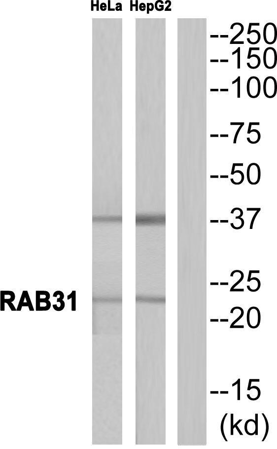 RAB31 Antibody (PA5-39401) in Western Blot