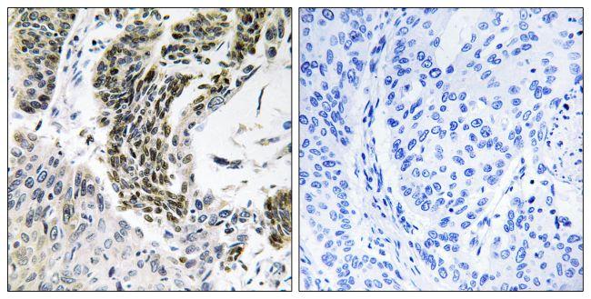 RREB1 Antibody (PA5-39410) in Immunohistochemistry (Paraffin)