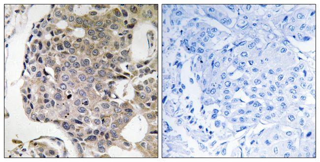 RIM4 Antibody (PA5-39411) in Immunohistochemistry (Paraffin)