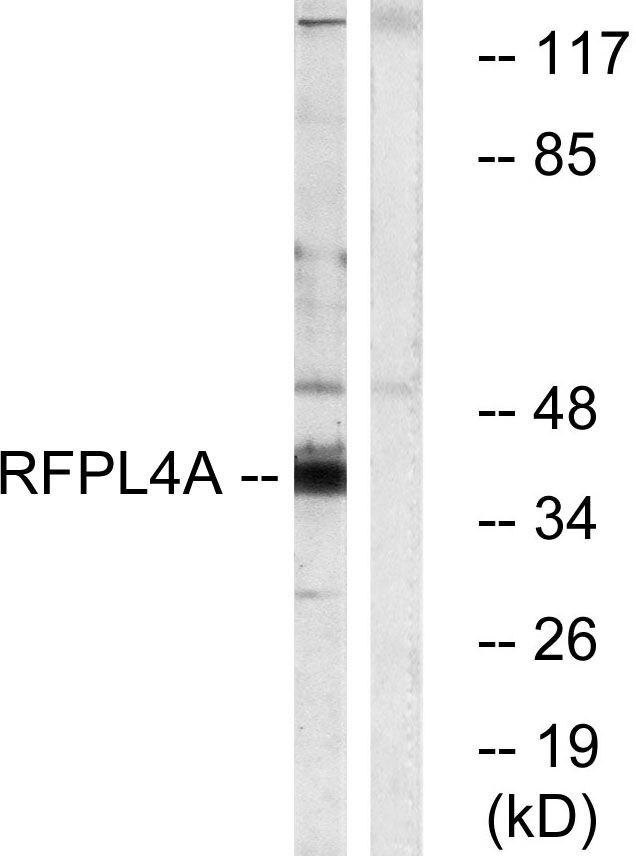 RFPL4A Antibody (PA5-39413) in Western Blot