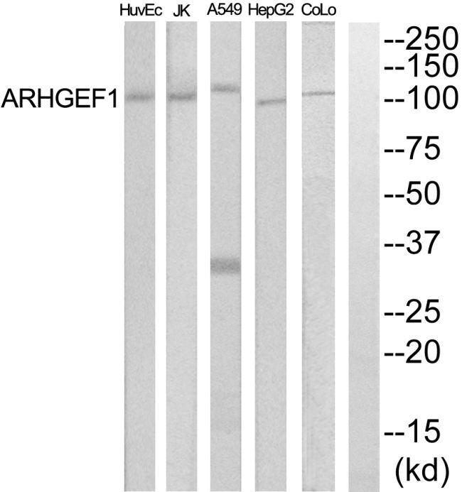 ARHGEF1 Antibody (PA5-39416)