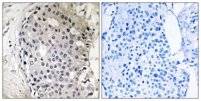 ARHGEF10 Antibody (PA5-39417)