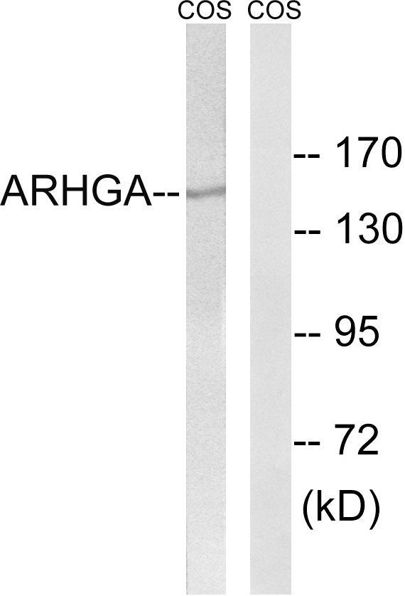 ARHGEF10 Antibody (PA5-39417) in Western Blot