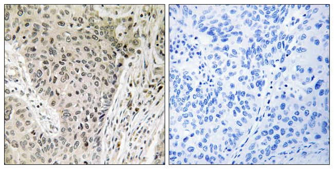 ARHGEF19 Antibody (PA5-39420)